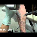 Hur exakt är borttagna tatueringar?