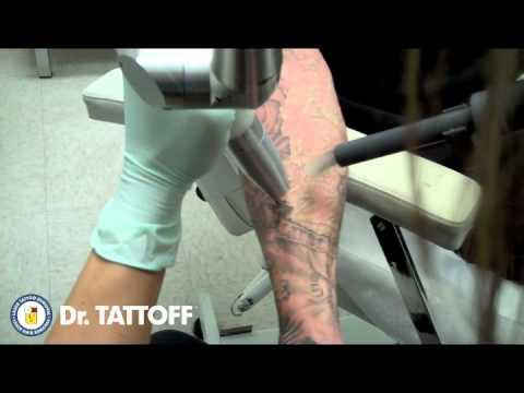 penis tattoo entfernt ehemann