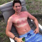 Der beste Sonnenbrand aller Zeiten