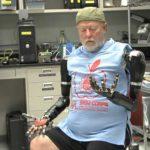 Double arm amputointipotilaiden ihminen saa mielenhallinnan robottikäsivarsia