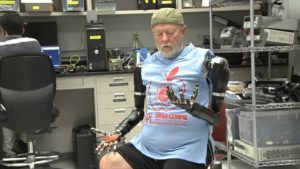 Double arm amputees man gets mind-controlled robotic arms