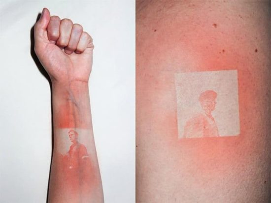 Sunburn Tatuajes Fotos