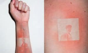 Sonnenbrand Foto Tattoos