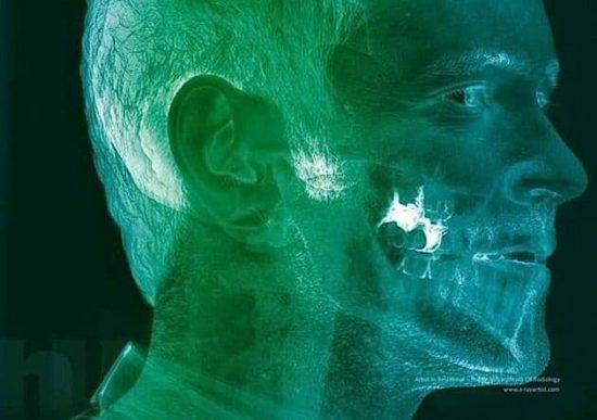 Fotografia do raio X de Hugh Turvey