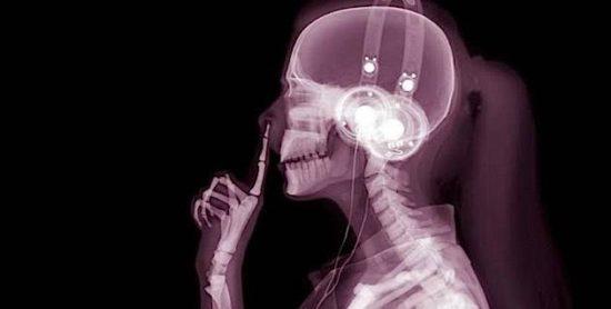 Röntgenfotografie von Hugh Turvey