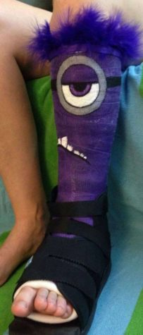 Male Minion Gips