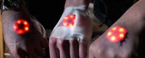 Neuster Biohacking Trend: Implantation eines Arc-Reaktors unter die Haut