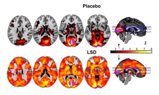 Brain on LSD in MRI