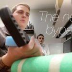 Paraplegic voi valvoa hänen käsivartensa jälleen ansiosta siru aivoissa