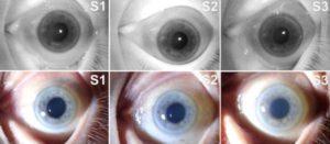 Biometrie toter Augen