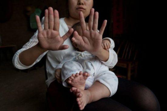 Chinesischer Junge wurde mit 31 Fingern und Zehen geboren