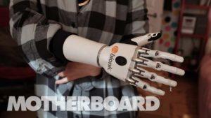 Leben mit einer Prothese in der Zukunft