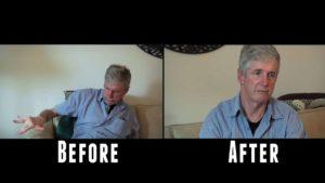 Parkinson-Patient versucht das erste mal Marihuana