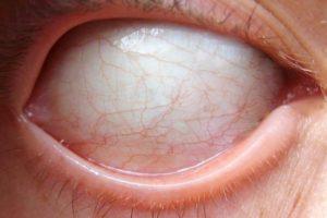 O olho Branco