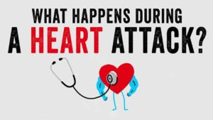 Was bei einem Herzinfarkt passiert
