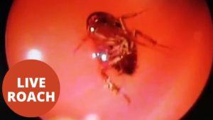 Ärzte entdecken lebende Kakerlake im Kopf einer Frau